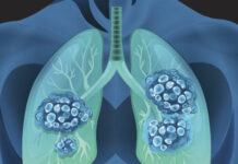 What Are the Probabilities a Lung Nodule or Spot Is Most cancers
